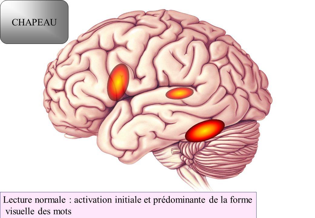 Lecture normale : activation initiale et prédominante de la forme visuelle des mots CHAPEAU