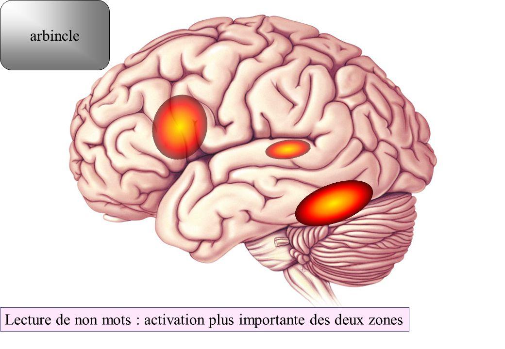 Lecture de non mots : activation plus importante des deux zones arbincle