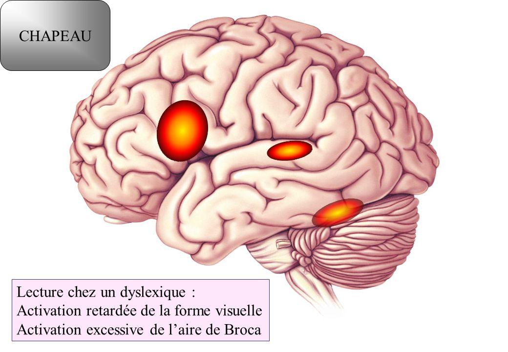 Lecture chez un dyslexique : Activation retardée de la forme visuelle Activation excessive de laire de Broca CHAPEAU