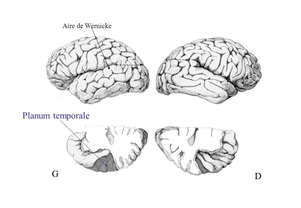 PT NON DYSLEXIC Planum temporale DYSLEXIC Planum temporale leftright Absence of planum asymmetry in the dyslexic brain From Galaburda et al., 1979; 1985