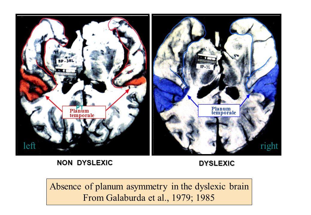 PT NON DYSLEXIC Planum temporale DYSLEXIC Planum temporale leftright Absence of planum asymmetry in the dyslexic brain From Galaburda et al., 1979; 19