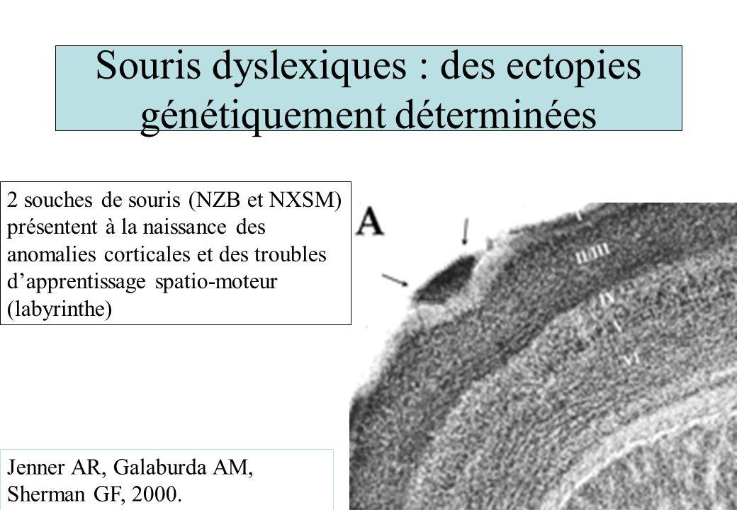Souris dyslexiques : des ectopies génétiquement déterminées Jenner AR, Galaburda AM, Sherman GF, 2000. 2 souches de souris (NZB et NXSM) présentent à