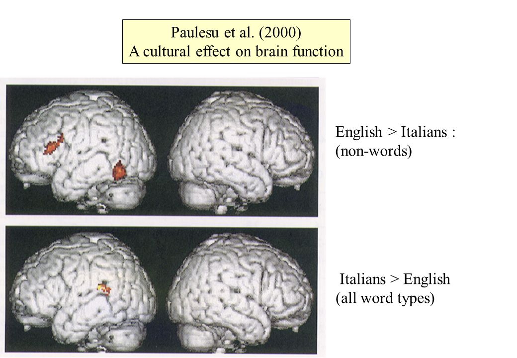 Paulesu et al. (2000) A cultural effect on brain function English > Italians : (non-words) Italians > English (all word types)