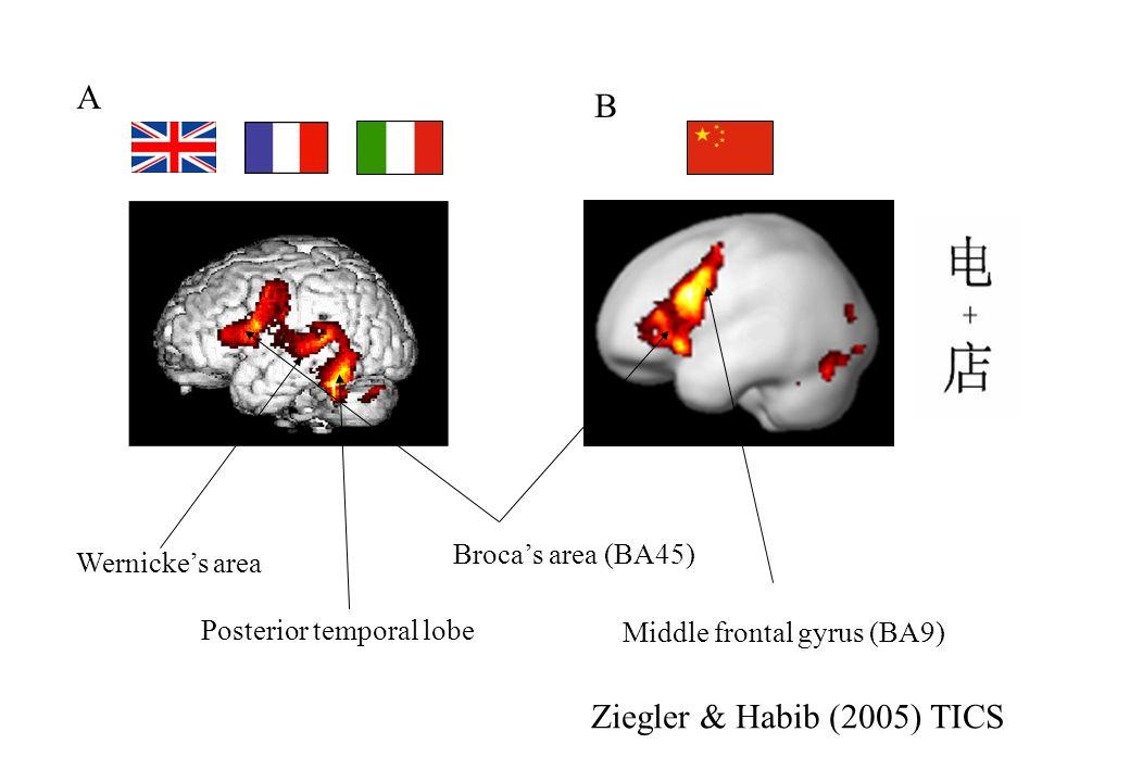 Middle frontal gyrus (BA9) Brocas area (BA45) Wernickes area Posterior temporal lobe A B Ziegler & Habib (2005) TICS