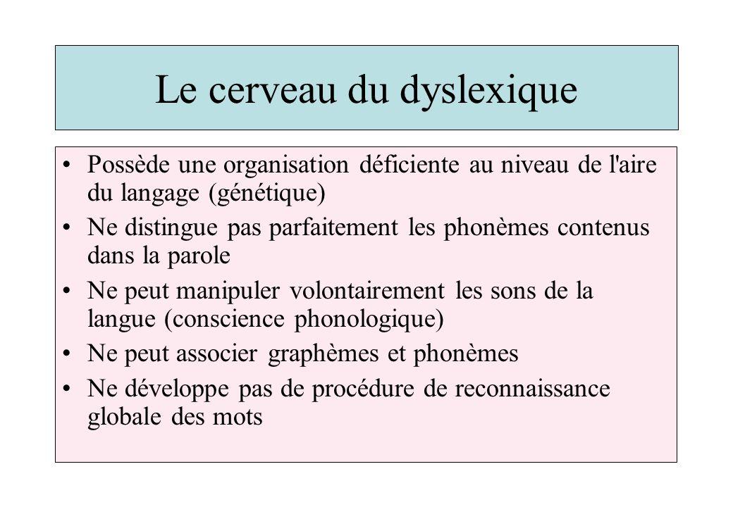Le cerveau du dyslexique Possède une organisation déficiente au niveau de l'aire du langage (génétique) Ne distingue pas parfaitement les phonèmes con