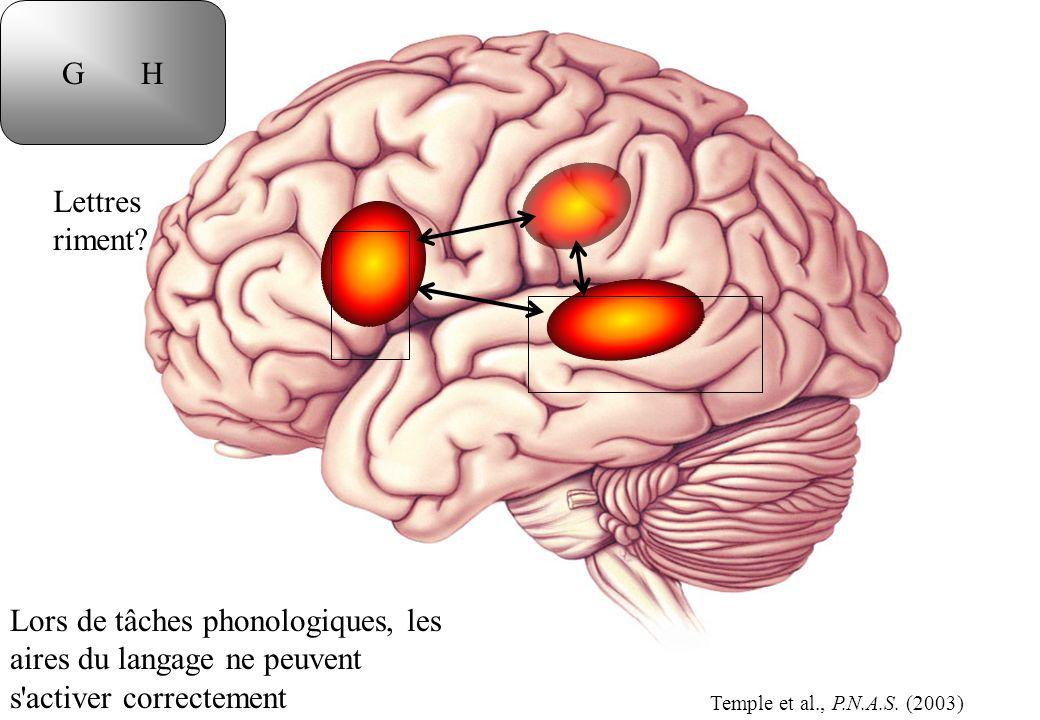 Lors de tâches phonologiques, les aires du langage ne peuvent s'activer correctement Lettres riment? G H Temple et al., P.N.A.S. (2003)