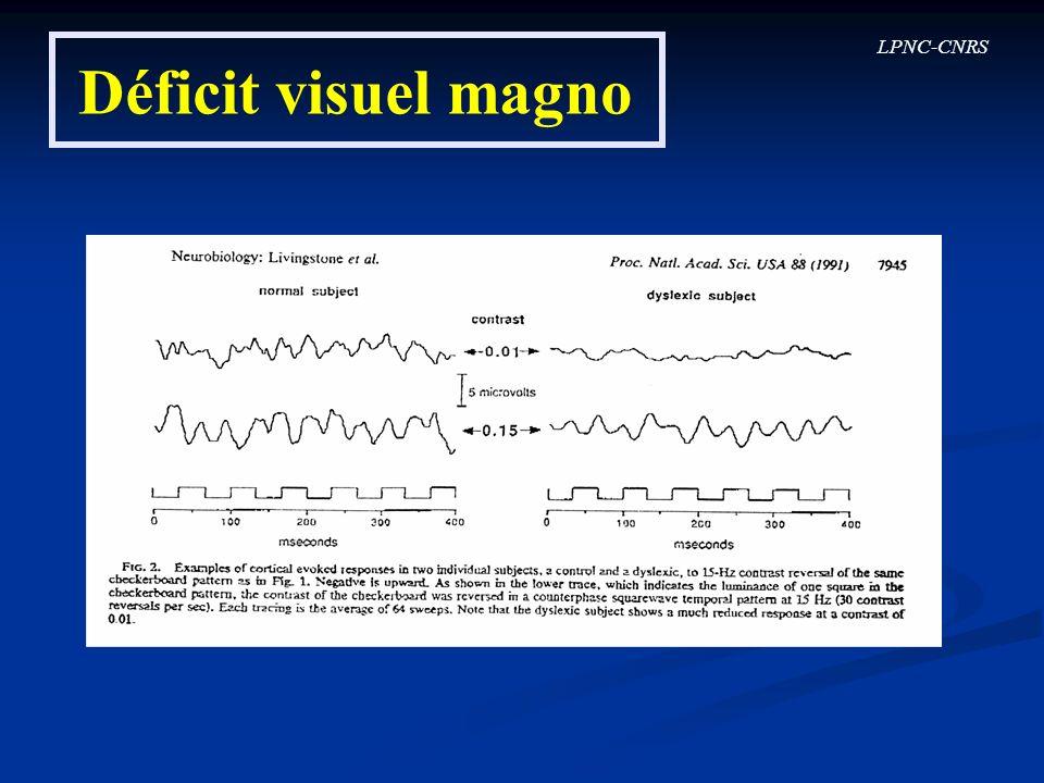 LPNC-CNRS Déficit visuel magno