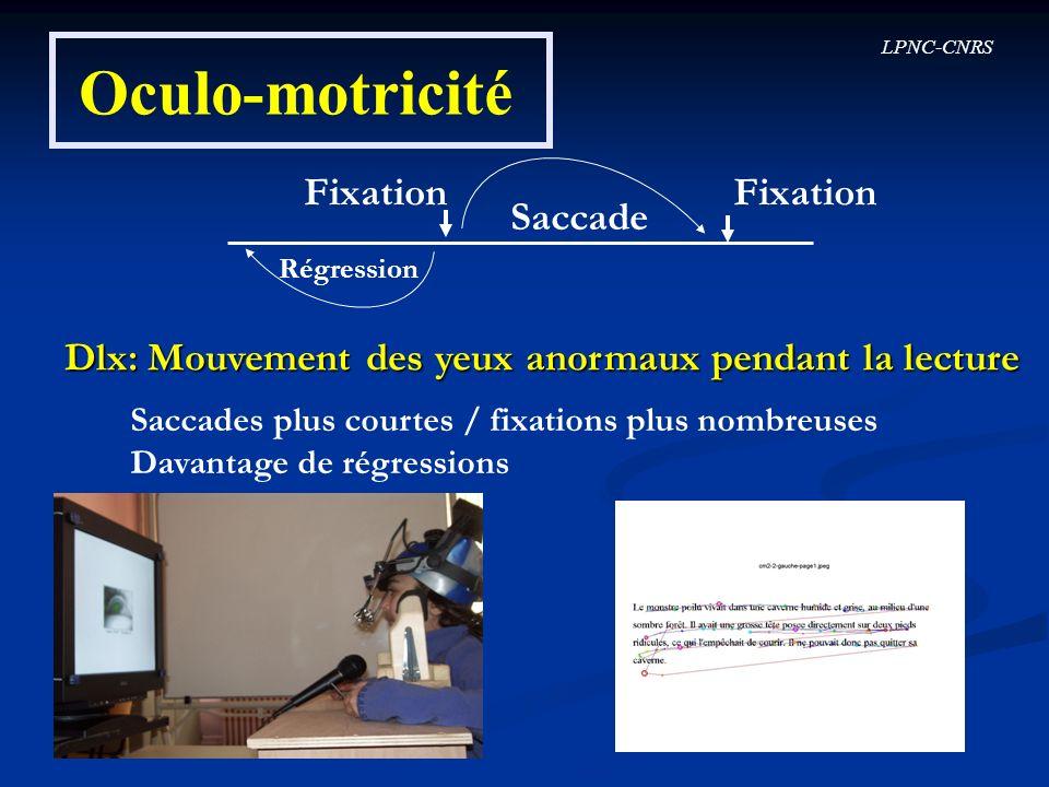 LPNC-CNRS Oculo-motricité Fixation Saccade Régression Dlx: Mouvement des yeux anormaux pendant la lecture Saccades plus courtes / fixations plus nombr