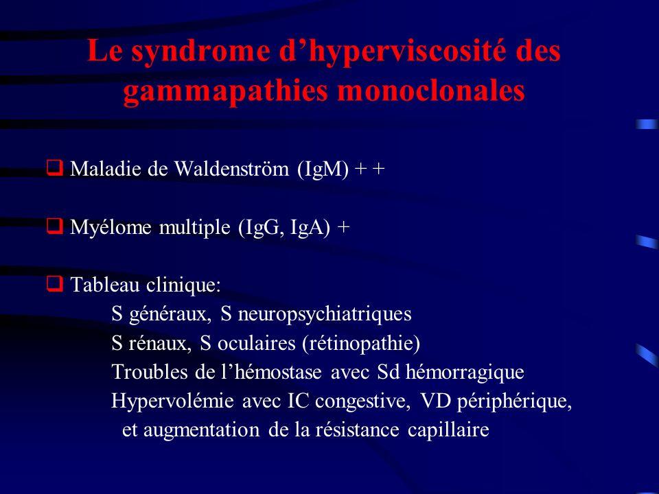 Le syndrome dhyperviscosité des gammapathies monoclonales Maladie de Waldenström (IgM) + + Myélome multiple (IgG, IgA) + Tableau clinique: S généraux, S neuropsychiatriques S rénaux, S oculaires (rétinopathie) Troubles de lhémostase avec Sd hémorragique Hypervolémie avec IC congestive, VD périphérique, et augmentation de la résistance capillaire