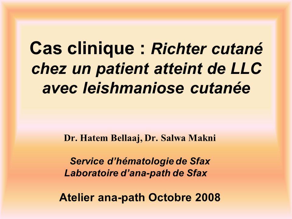 Cas clinique : Richter cutané chez un patient atteint de LLC avec leishmaniose cutanée Dr. Hatem Bellaaj, Dr. Salwa Makni Service dhématologie de Sfax
