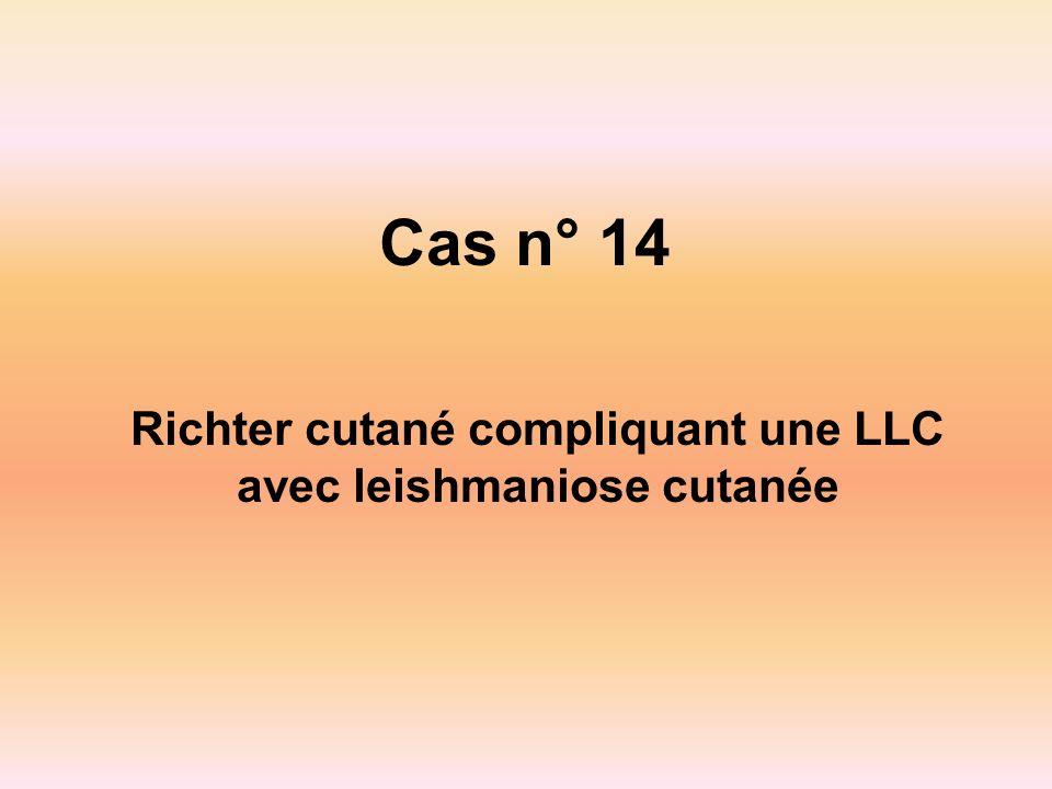 Cas n° 14 Richter cutané compliquant une LLC avec leishmaniose cutanée