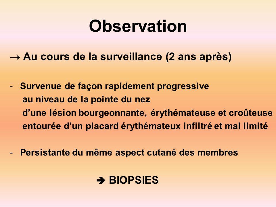 Observation Au cours de la surveillance (2 ans après) -Survenue de façon rapidement progressive au niveau de la pointe du nez dune lésion bourgeonnant