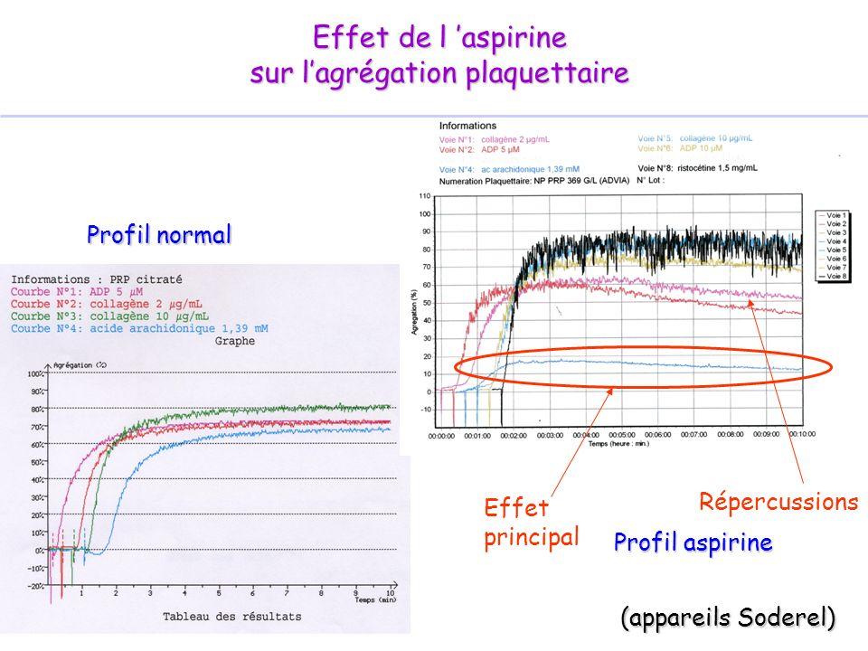 Effet de l aspirine sur lagrégation plaquettaire (appareils Soderel) Profil normal Effet principal Répercussions Profil aspirine