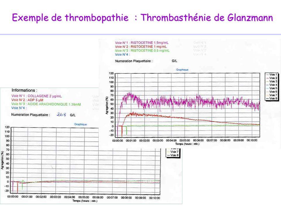 Exemple de thrombopathie : Thrombasthénie de Glanzmann