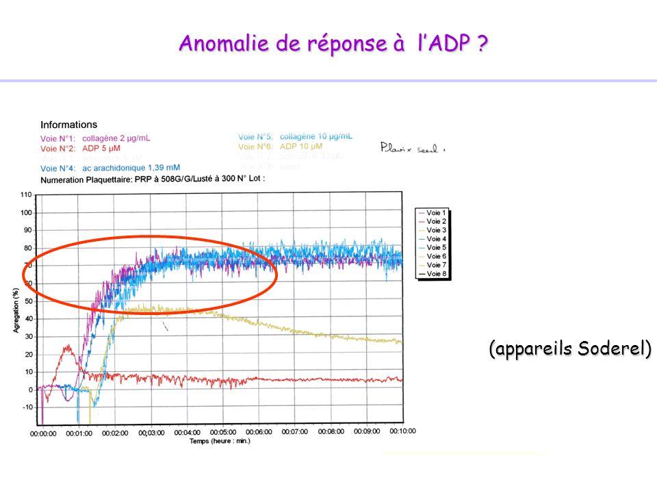 Anomalie de réponse à lADP ? (appareils Soderel)