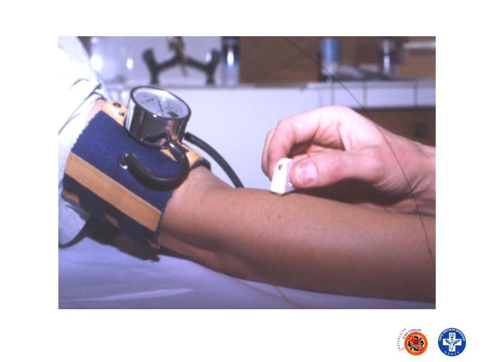 Autres tests permettant dévaluer la fonctionnalité plaquettaire -Tests plus spécifiques permettant une exploration « ciblée » Tests de sécrétion : Tests de sécrétion : - sécrétion ATP : test luciférine/luciférase - CMF : test à la mépacrine Expression des Gp plaquettaires (CMF) Expression des Gp plaquettaires (CMF)