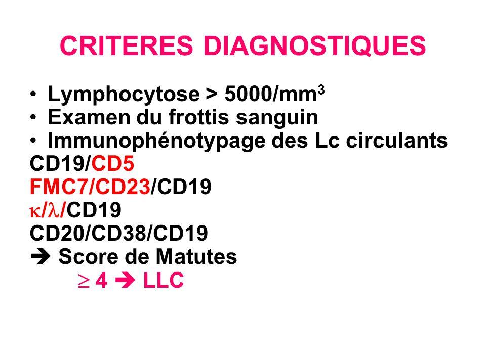 Quel bilan Pronostique Classification de Binet Temps de doublement des Lymphocytes An.