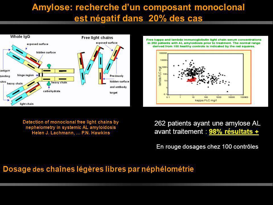 Dosage des chaînes légères libres par néphélométrie 262 patients ayant une amylose AL avant traitement : 98% résultats + En rouge dosages chez 100 con