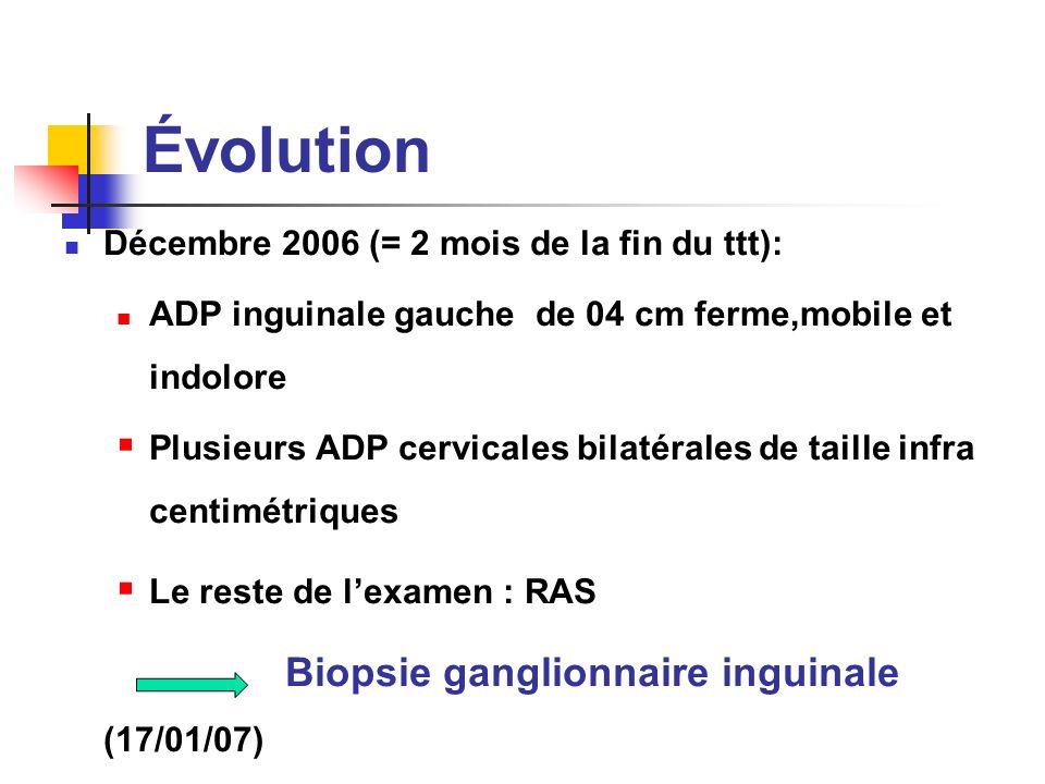 Évolution Décembre 2006 (= 2 mois de la fin du ttt): ADP inguinale gauche de 04 cm ferme,mobile et indolore Plusieurs ADP cervicales bilatérales de ta
