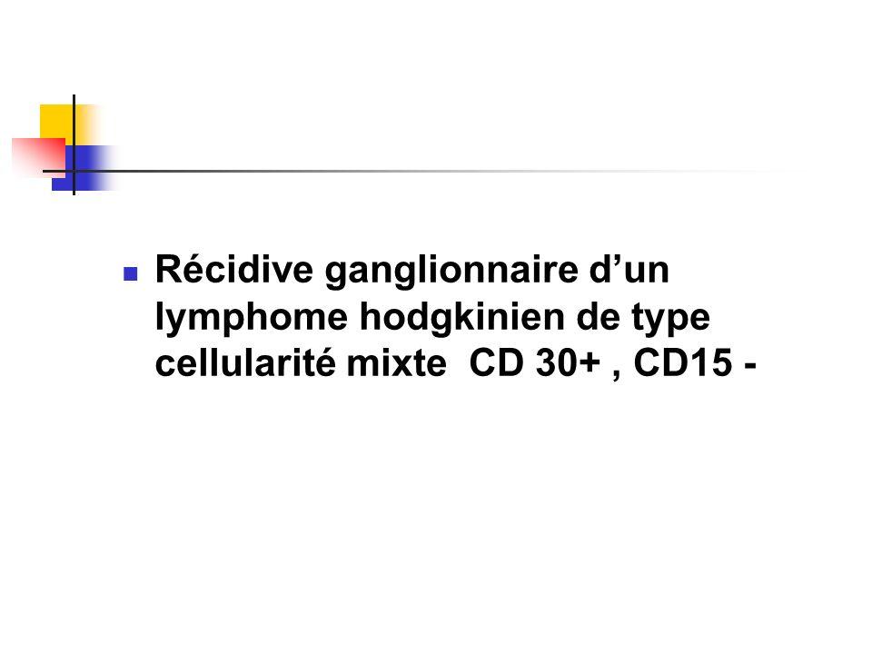 Récidive ganglionnaire dun lymphome hodgkinien de type cellularité mixte CD 30+, CD15 -