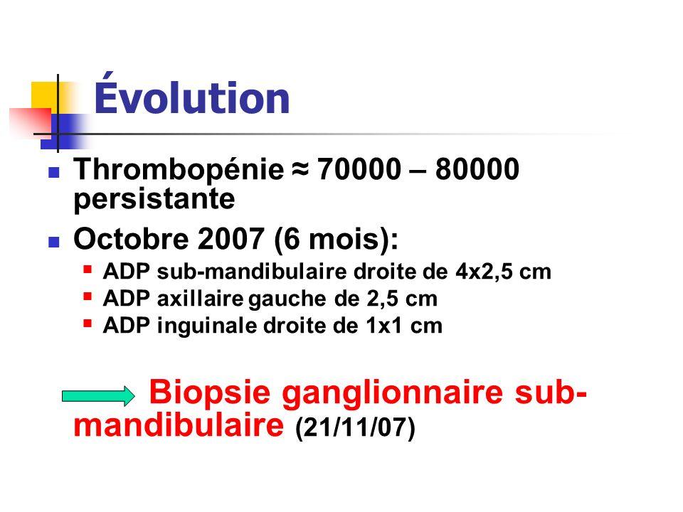 Évolution Thrombopénie 70000 – 80000 persistante Octobre 2007 (6 mois): ADP sub-mandibulaire droite de 4x2,5 cm ADP axillaire gauche de 2,5 cm ADP ing
