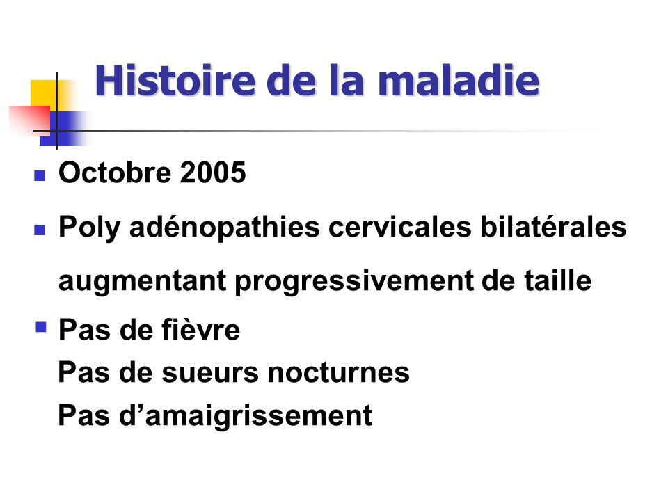 Histoire de la maladie Octobre 2005 Poly adénopathies cervicales bilatérales augmentant progressivement de taille Pas de fièvre Pas de sueurs nocturne