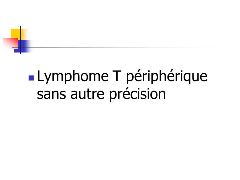 Lymphome T périphérique sans autre précision