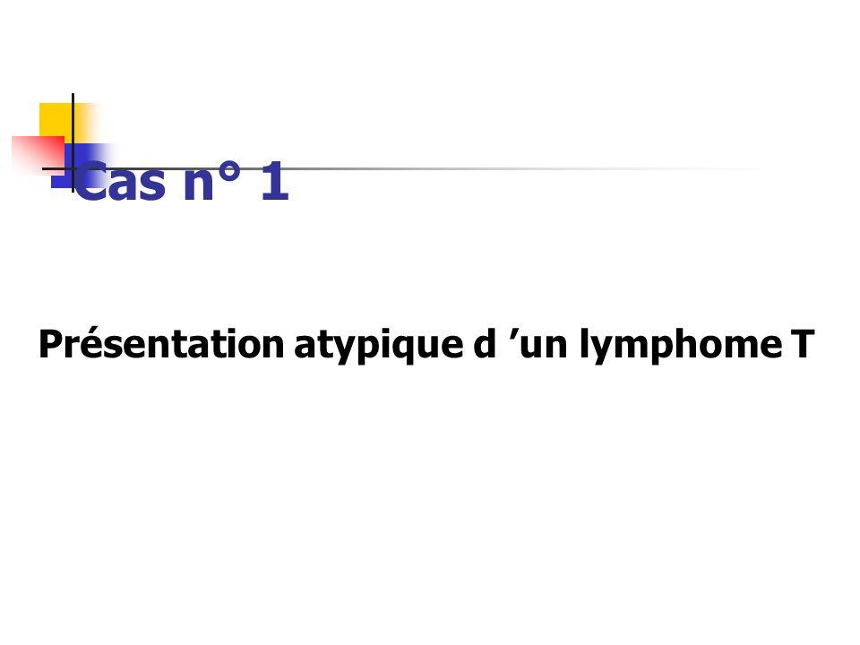 Cas n° 1 Présentation atypique d un lymphome T