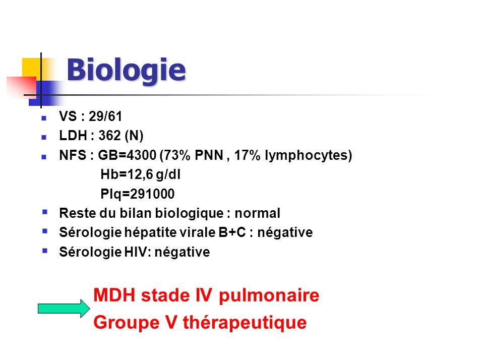 Biologie VS : 29/61 LDH : 362 (N) NFS : GB=4300 (73% PNN, 17% lymphocytes) Hb=12,6 g/dl Plq=291000 Reste du bilan biologique : normal Sérologie hépati