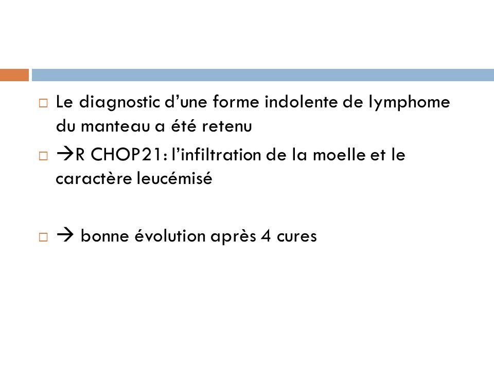 Le diagnostic dune forme indolente de lymphome du manteau a été retenu R CHOP21: linfiltration de la moelle et le caractère leucémisé bonne évolution