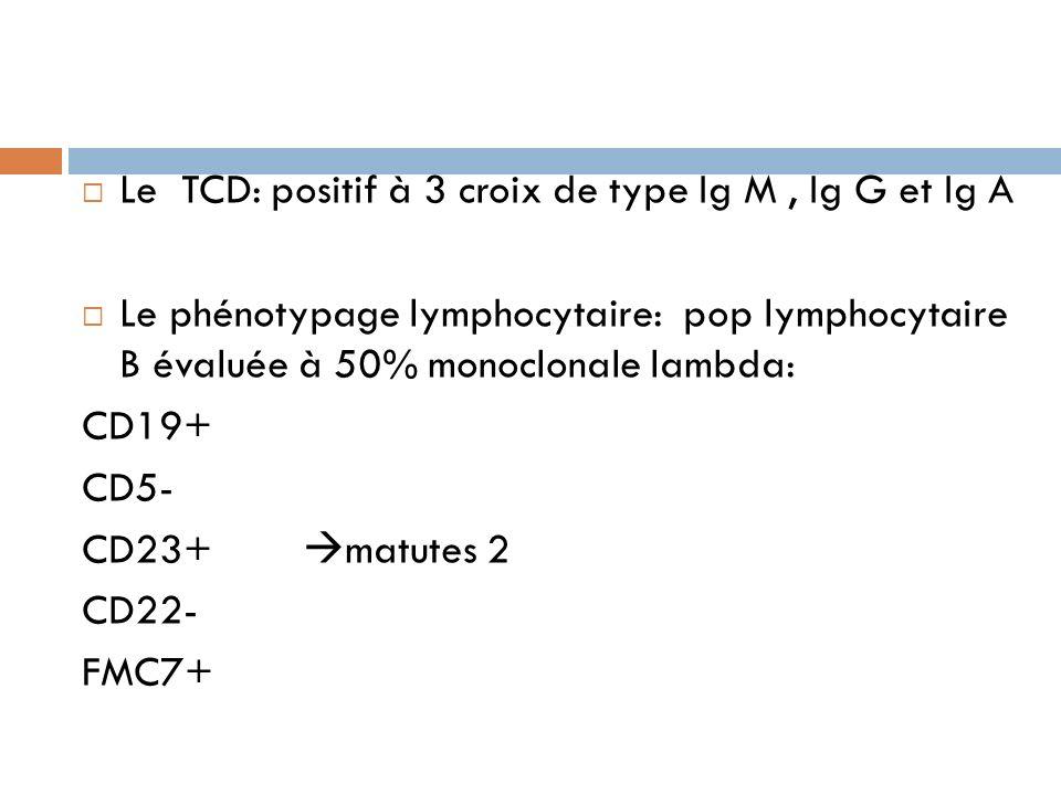 Le TCD: positif à 3 croix de type Ig M, Ig G et Ig A Le phénotypage lymphocytaire: pop lymphocytaire B évaluée à 50% monoclonale lambda: CD19+ CD5- CD