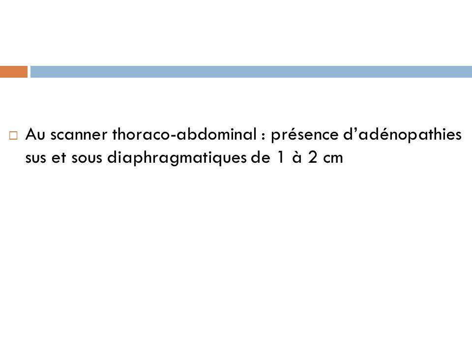 Au scanner thoraco-abdominal : présence dadénopathies sus et sous diaphragmatiques de 1 à 2 cm
