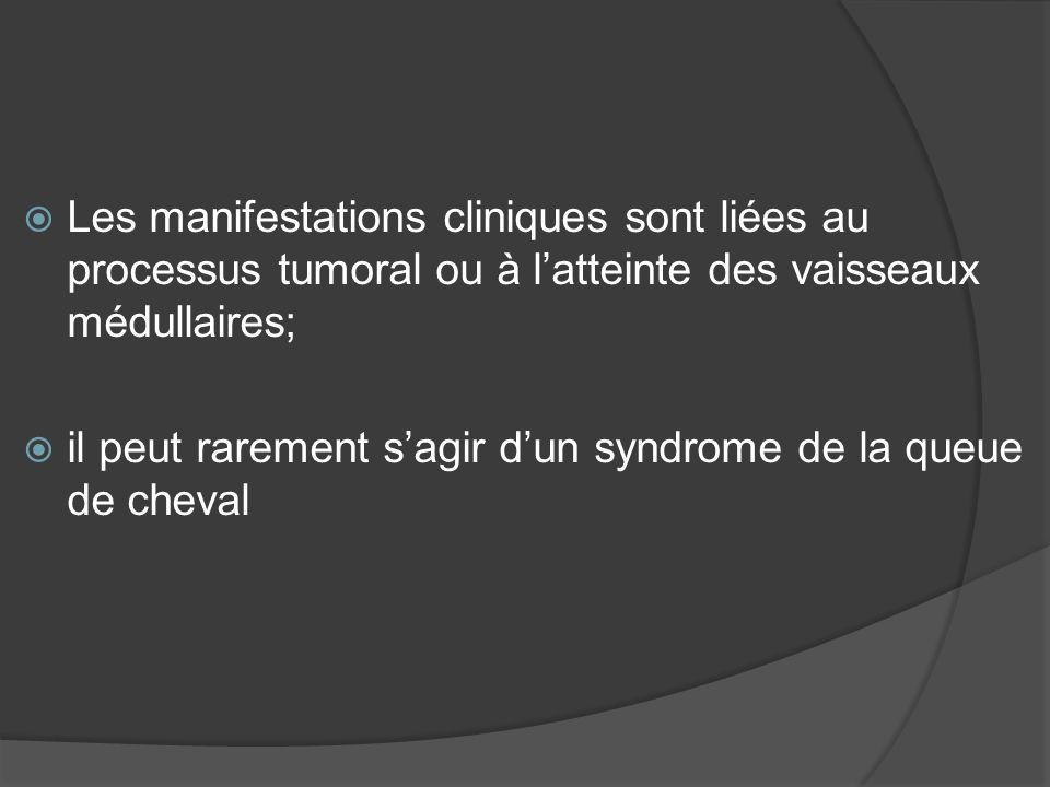 Les manifestations cliniques sont liées au processus tumoral ou à latteinte des vaisseaux médullaires; il peut rarement sagir dun syndrome de la queue