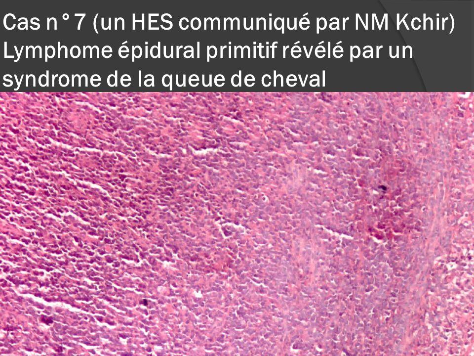 Cas n°7 (un HES communiqué par NM Kchir) Lymphome épidural primitif révélé par un syndrome de la queue de cheval