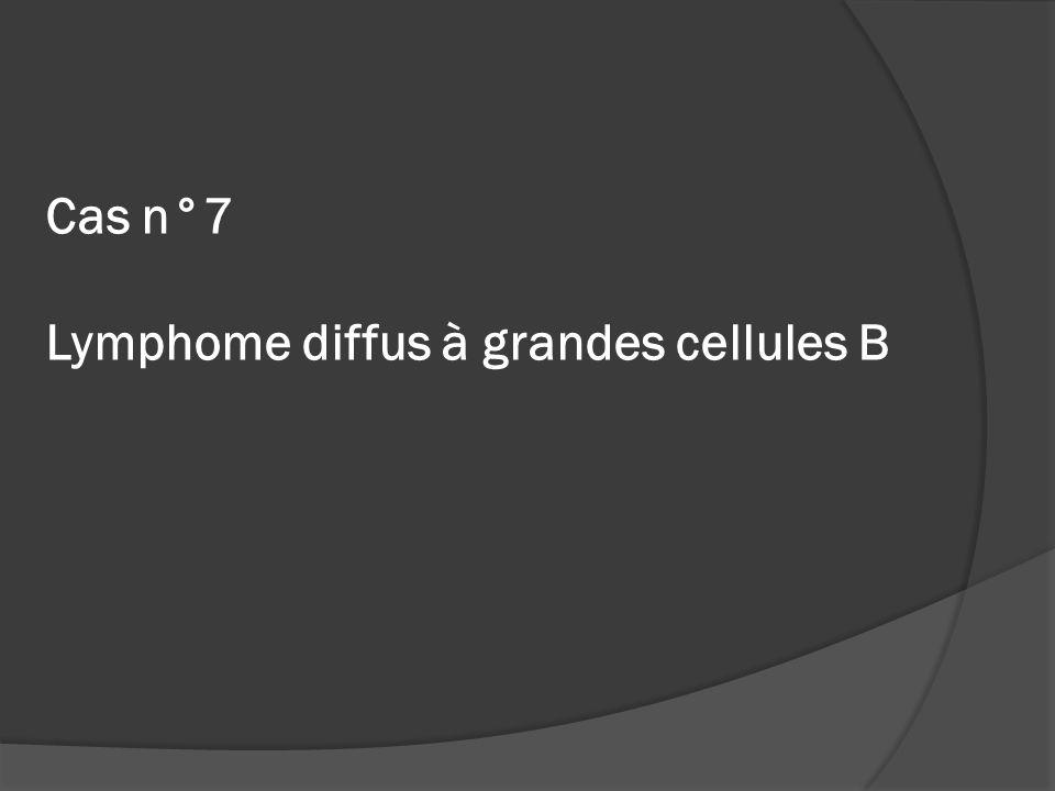 Cas n°7 Lymphome diffus à grandes cellules B