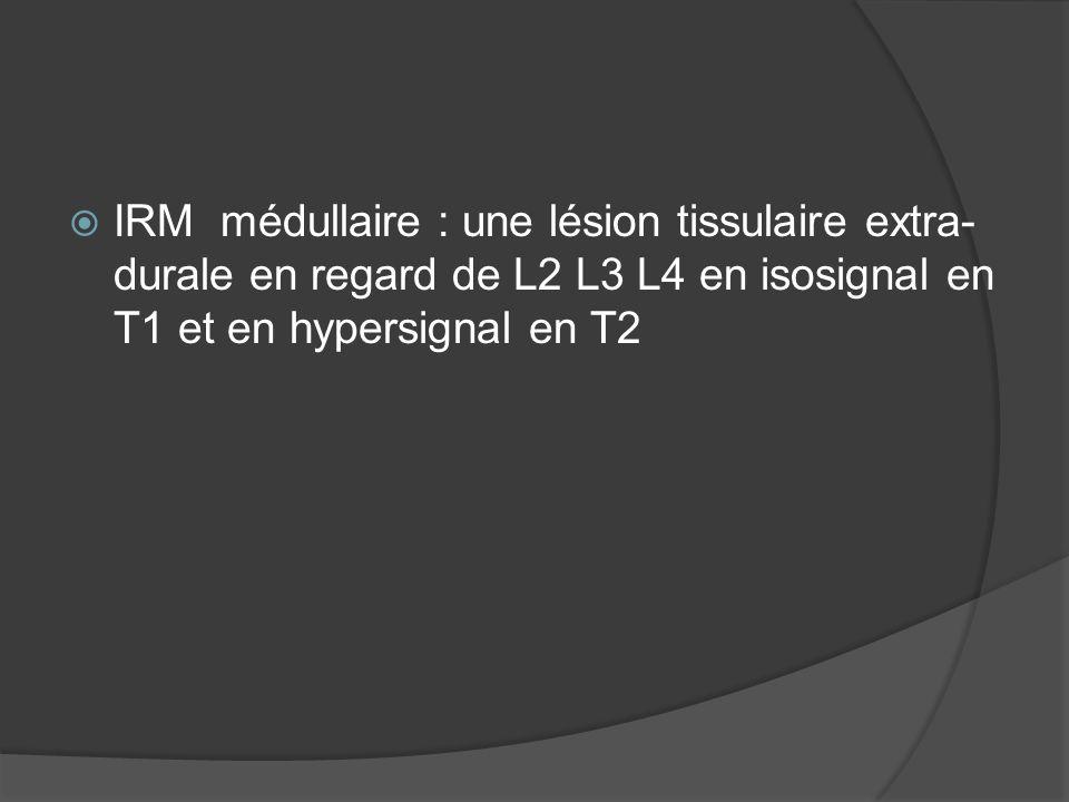 IRM médullaire : une lésion tissulaire extra- durale en regard de L2 L3 L4 en isosignal en T1 et en hypersignal en T2