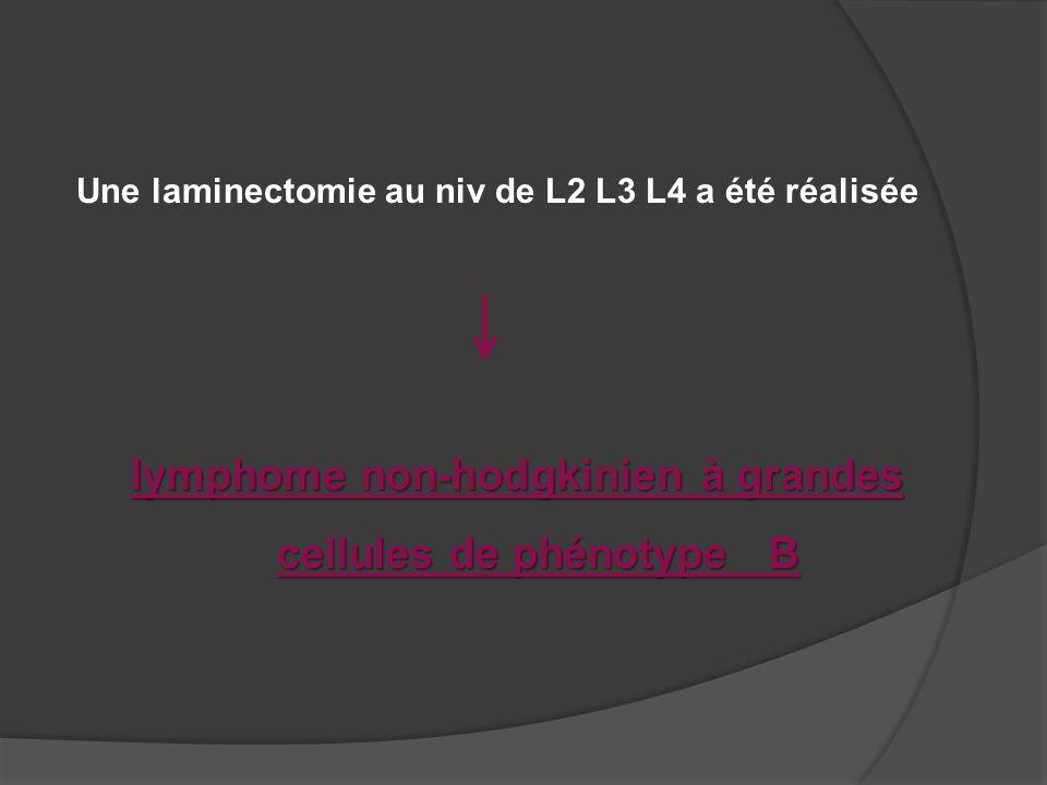 lymphome non-hodgkinien à grandes cellules de phénotype B Une laminectomie au niv de L2 L3 L4 a été réalisée