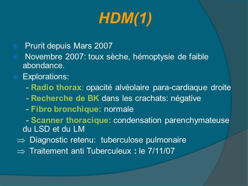 HDM (2) Amélioration clinique transitoire Fin Novembre 2007: récidive clinique avec des signes généraux Scanner thoracique ( 21/11/07): extension de la condensation bilobaire (LSD et LM) qui est le siège de cavités aériques confluentes sans adénomégalies médiastinales associées Biopsie pulmonaire a été indiquée, mais non faite