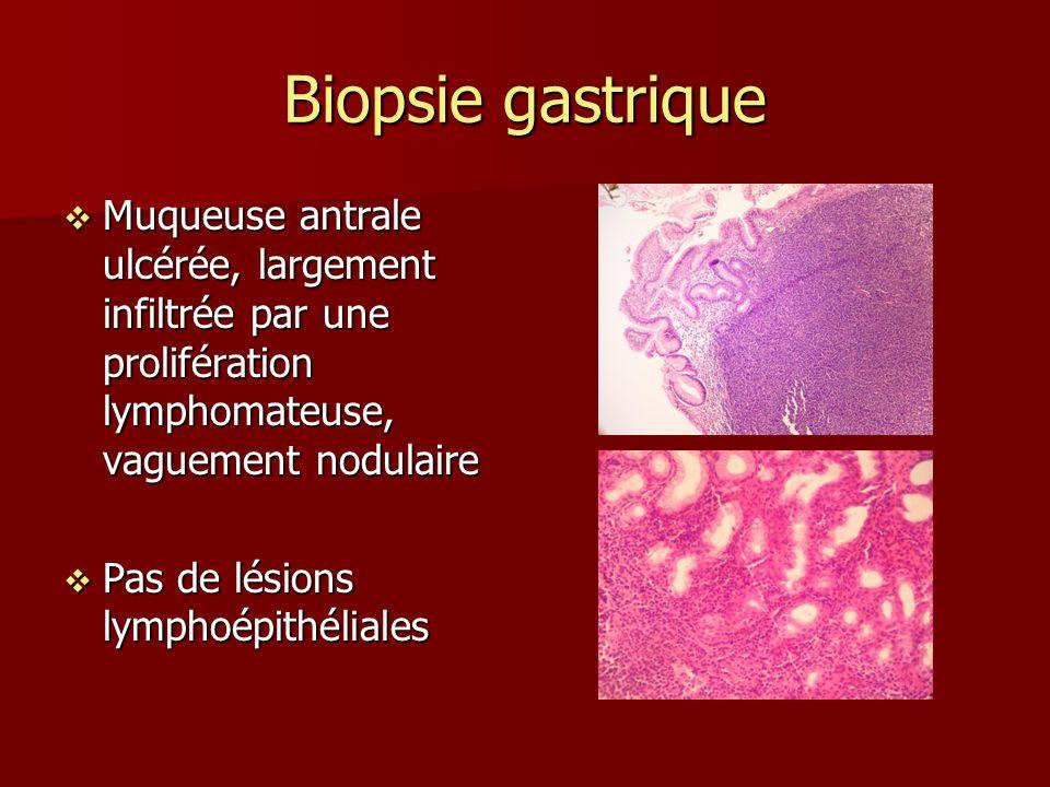Biopsie gastrique Muqueuse antrale ulcérée, largement infiltrée par une prolifération lymphomateuse, vaguement nodulaire Muqueuse antrale ulcérée, largement infiltrée par une prolifération lymphomateuse, vaguement nodulaire Pas de lésions lymphoépithéliales Pas de lésions lymphoépithéliales
