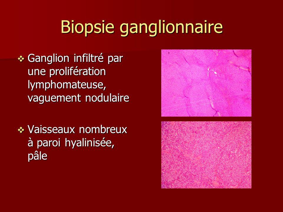 Biopsie ganglionnaire Ganglion infiltré par une prolifération lymphomateuse, vaguement nodulaire Ganglion infiltré par une prolifération lymphomateuse, vaguement nodulaire Vaisseaux nombreux à paroi hyalinisée, pâle Vaisseaux nombreux à paroi hyalinisée, pâle