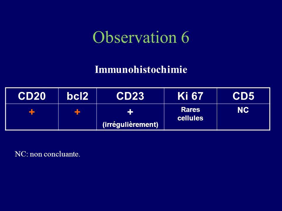 Observation 6 Immunohistochimie CD20bcl2CD23Ki 67CD5 +++ (irrégulièrement) Rares cellules NC NC: non concluante.