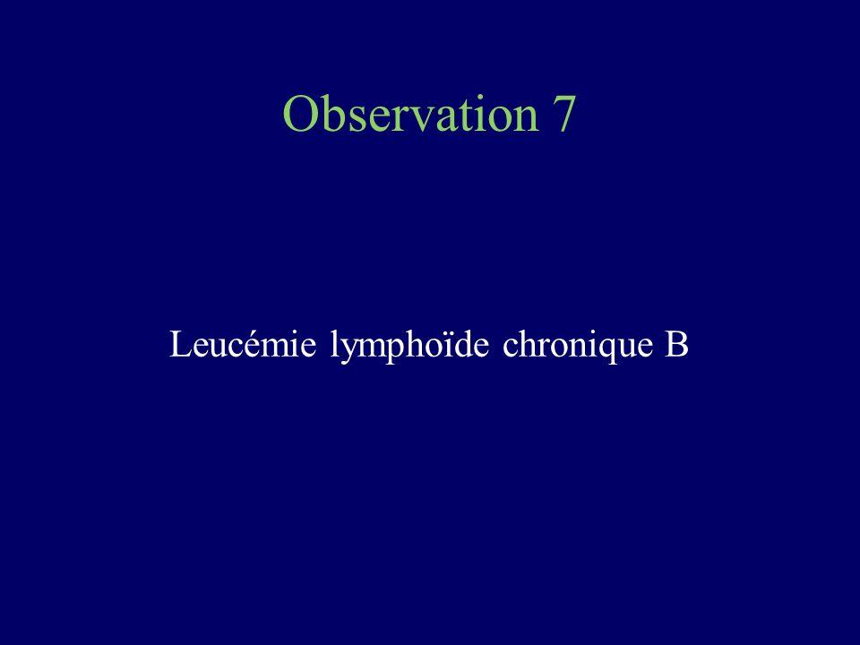 Observation 7 Leucémie lymphoïde chronique B