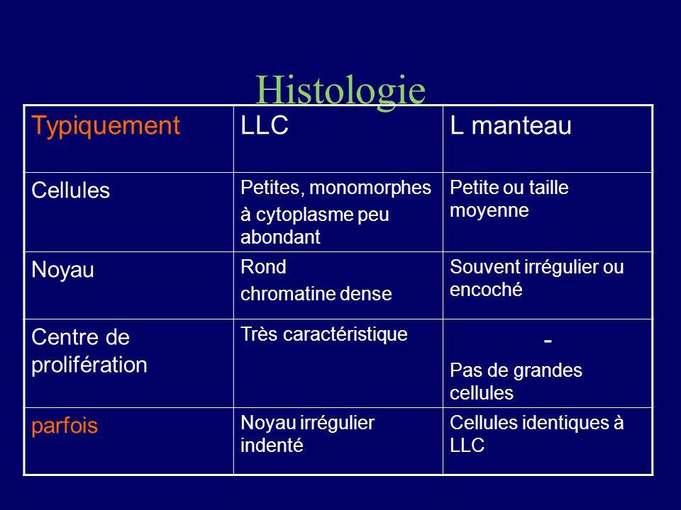 Histologie TypiquementLLCL manteau Cellules Petites, monomorphes à cytoplasme peu abondant Petite ou taille moyenne Noyau Rond chromatine dense Souven