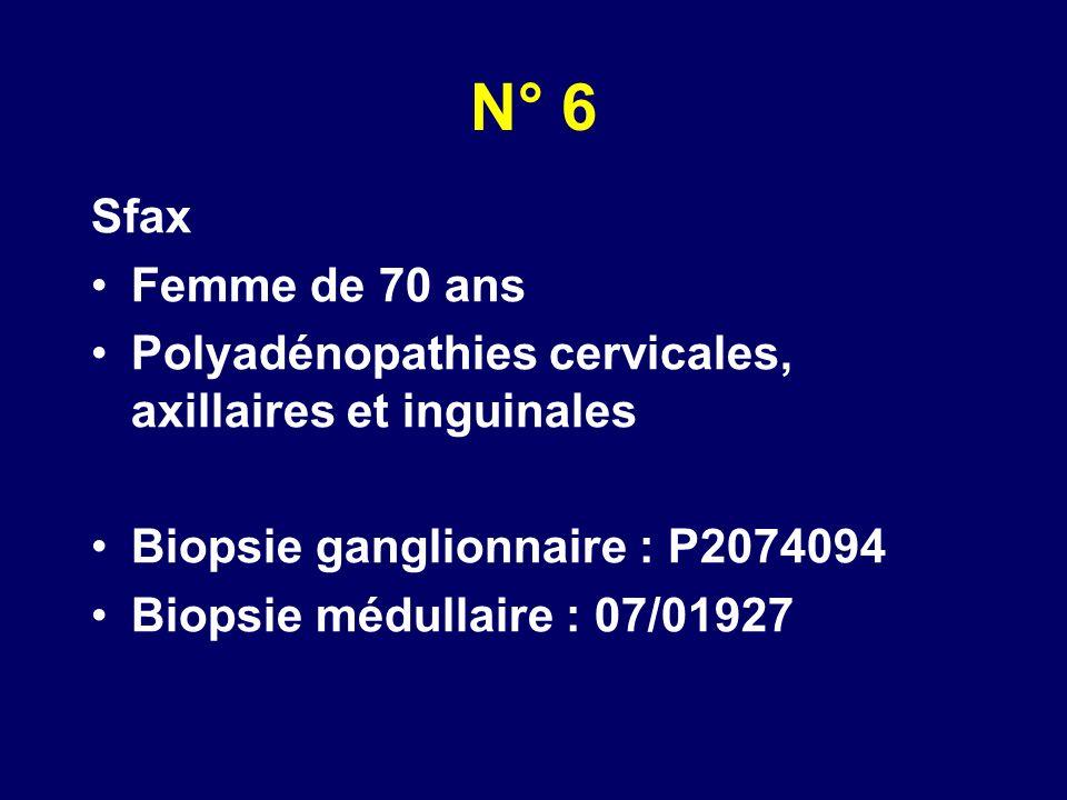 N° 6 Sfax Femme de 70 ans Polyadénopathies cervicales, axillaires et inguinales Biopsie ganglionnaire : P2074094 Biopsie médullaire : 07/01927
