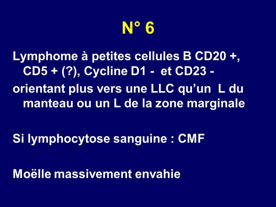 N° 6 Lymphome à petites cellules B CD20 +, CD5 + (?), Cycline D1 - et CD23 - orientant plus vers une LLC quun L du manteau ou un L de la zone marginal