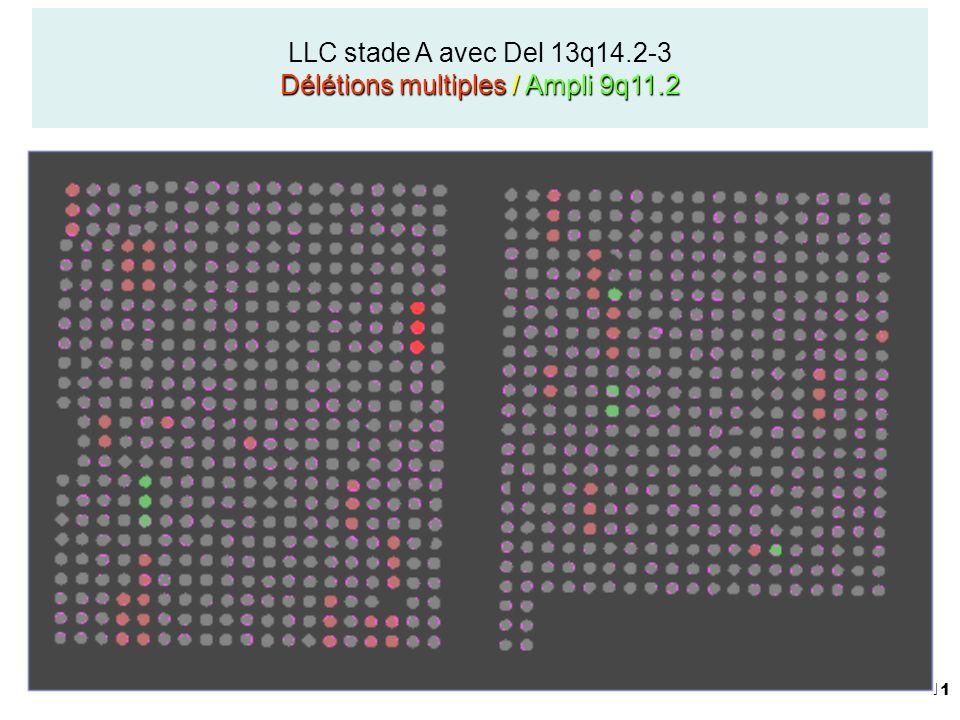 11 Délétions multiples / Ampli 9q11.2 LLC stade A avec Del 13q14.2-3 Délétions multiples / Ampli 9q11.2