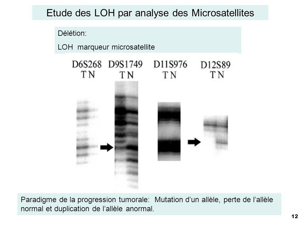 12 Délétion: LOH marqueur microsatellite Etude des LOH par analyse des Microsatellites Paradigme de la progression tumorale: Mutation dun allèle, perte de lallèle normal et duplication de lallèle anormal.