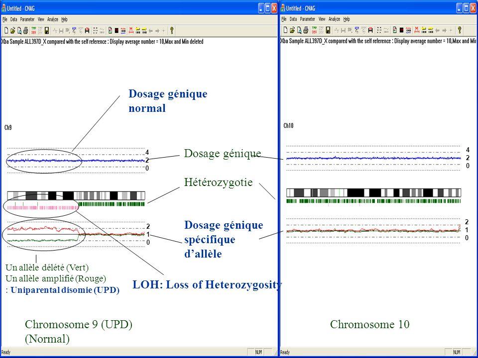 17 Chromosome 9 (UPD) Chromosome 10 (Normal) Dosage génique Hétérozygotie Dosage génique spécifique dallèle Dosage génique normal LOH: Loss of Heterozygosity Un allèle délété (Vert) Un allèle amplifié (Rouge) : Uniparental disomie (UPD) 420420 420420 210210 210210