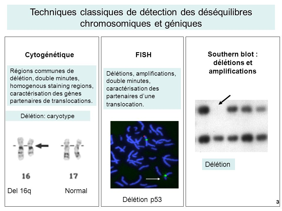 3 Délétion: caryotype Régions communes de délétion, double minutes, homogenous staining regions, caractérisation des gènes partenaires de translocations.