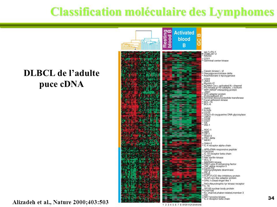 34 Classification moléculaire des Lymphomes Alizadeh et al., Nature 2000;403:503 DLBCL de ladulte puce cDNA